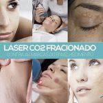 Laser de CO2 – Fracionado no rejuvenescimento