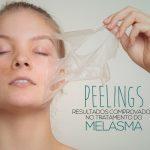 Peelings no tratamento contra o melasma